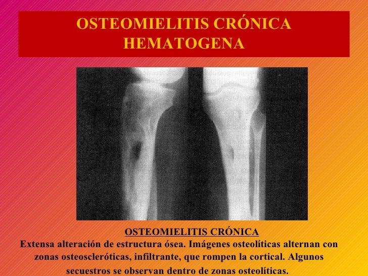 OSTEOMIELITIS CRÓNICA HEMATOGENA OSTEOMIELITIS CRÓNICA Extensa alteración de estructura ósea. Imágenes osteolíticas altern...