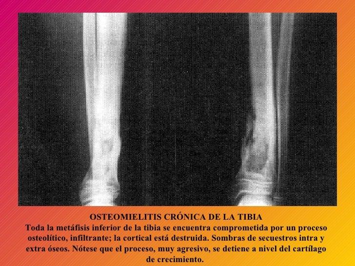 OSTEOMIELITIS CRÓNICA DE LA TIBIA Toda la metáfisis inferior de la tibia se encuentra comprometida por un proceso osteolít...