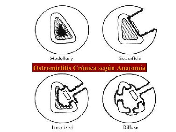 Osteomielitis Crónica según Anatomía