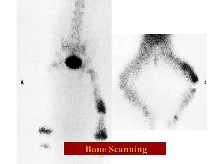 Bone Scanning