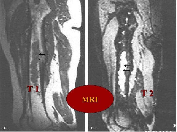 MRI T 1 T 2