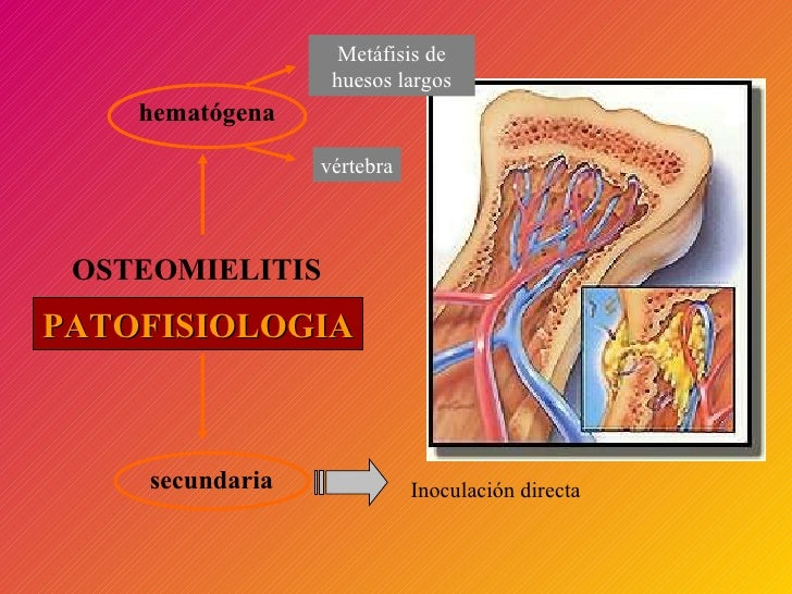 OSTEOMIELITIS Patogenia hematógena Metáfisis de huesos largos vértebra secundaria Inoculación directa PATOFISIOLOGIA