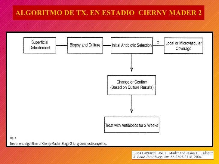 ALGORITMO DE TX. EN ESTADIO  CIERNY MADER 2