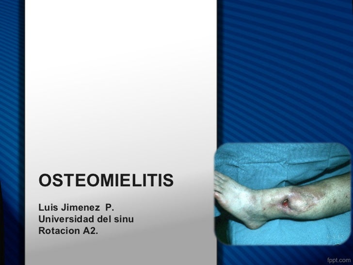 OSTEOMIELITISLuis Jimenez P.Universidad del sinuRotacion A2.