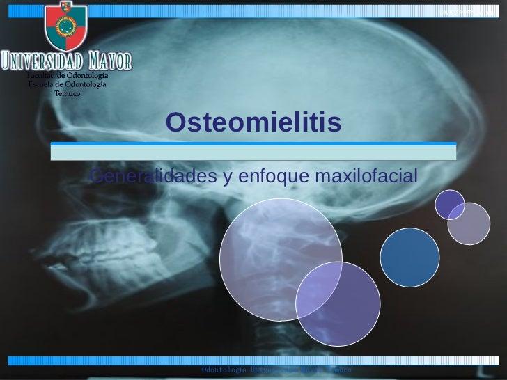 Osteomielitis Generalidades y enfoque maxilofacial