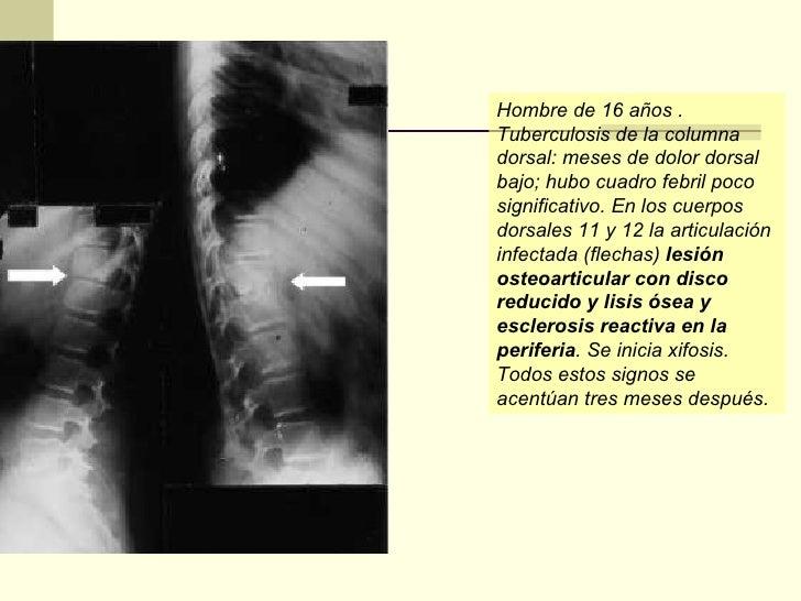 Spinalnoy las anestesias el dolor en la espalda