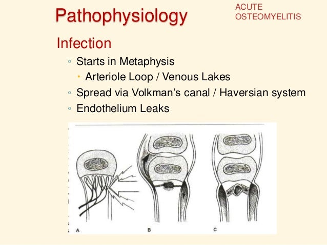 pathophysiology for chronic osteomyelitis Chronic osteomyelitis is a biofilm-based infection of bone where the majority of causative microorganisms are sessile in nature, rendering them less sensitive to systemic antibiotic agents and.