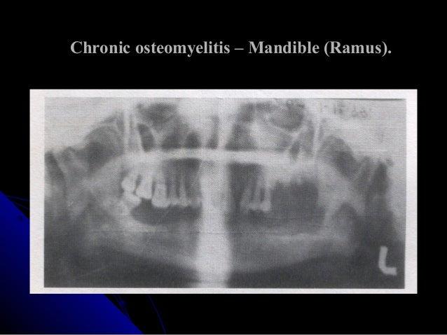 Osteomyelitis Chronic Osteomyelitis Jaw