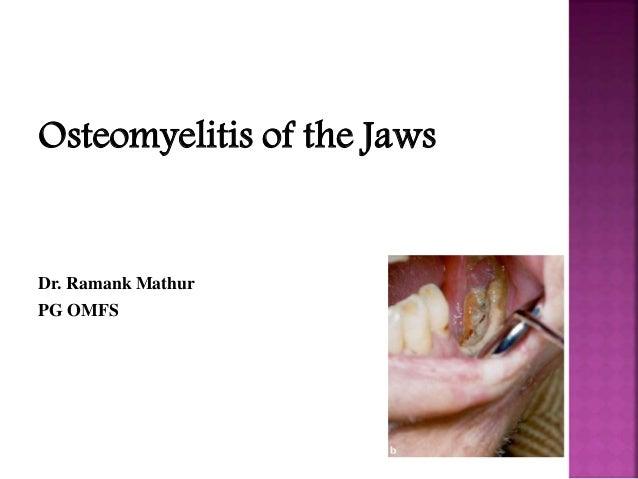 Osteomyelitis of the Jaws Dr. Ramank Mathur PG OMFS