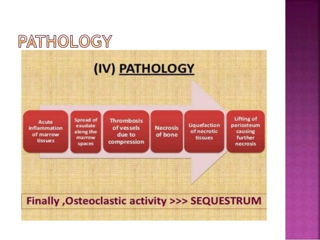 osteomyelitis of the jaw pdf
