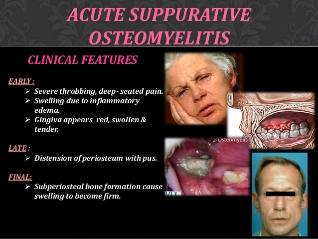 Osteomyelitis of jaw Chronic Osteomyelitis Jaw