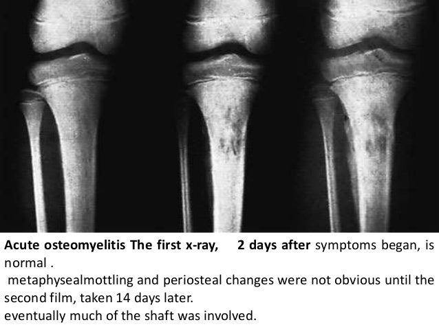Osteomyelitis seminar