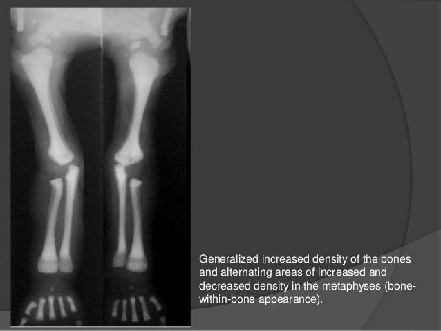 The characteristics of osteoscleorosis an elevation in bone density
