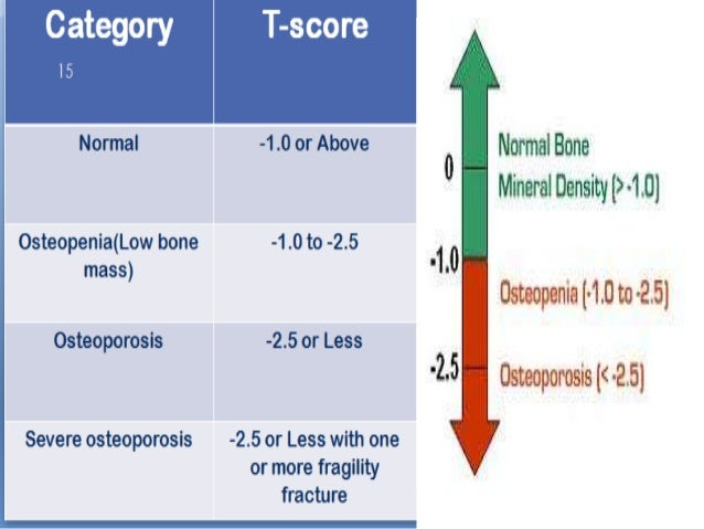 Osteoporosis And Physiotherapy Management