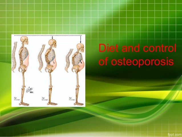 Do calcium supplements help with osteoporosis?
