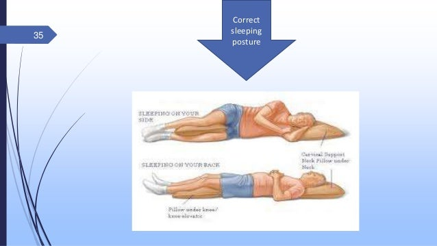 13+ Best sleeping position for osteoporosis of the spine info