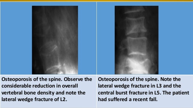 Osteoporosis Spine X Ray