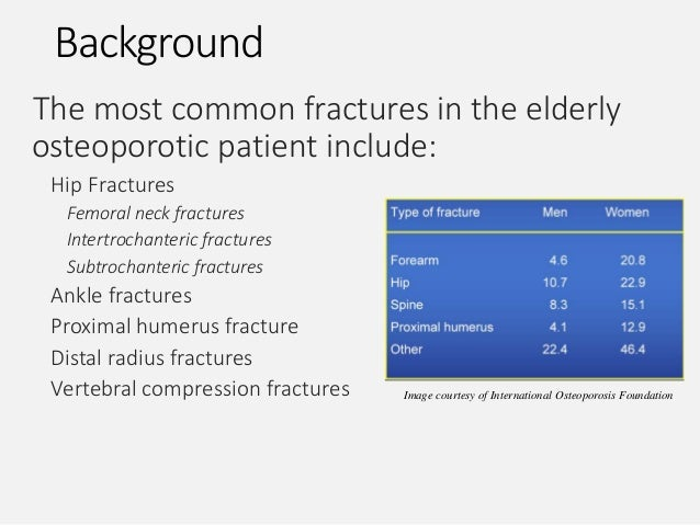 13++ Most common type of fracture in osteoporosis information