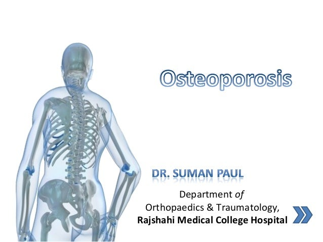27+ What does osteoporosis mean in medical terms information