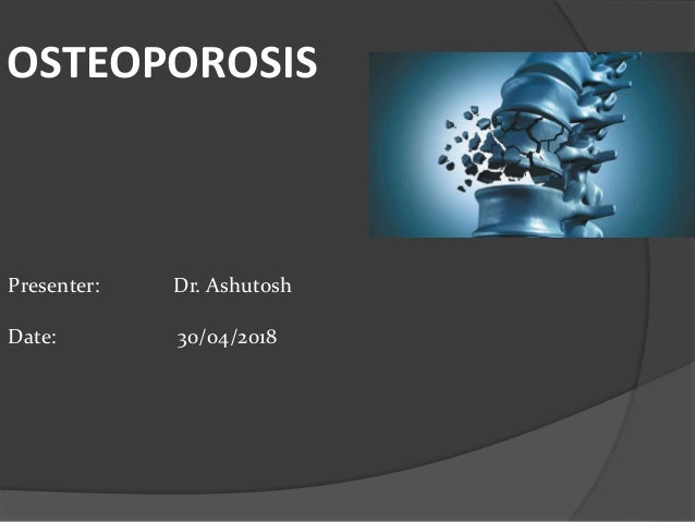 25+ Which technique is used to detect early osteoporosis ideas in 2021