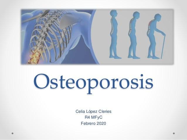 Osteoporosis Celia López Cleries R4 MFyC Febrero 2020