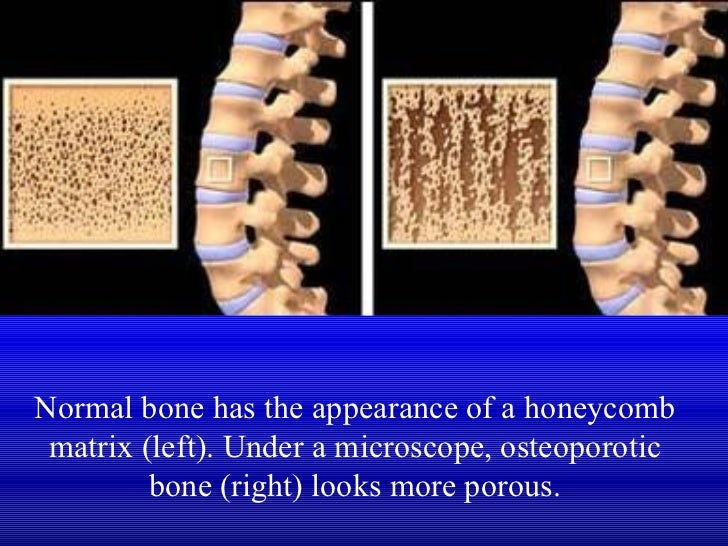 Understanding how osteoporosis occurs and affects the human bones