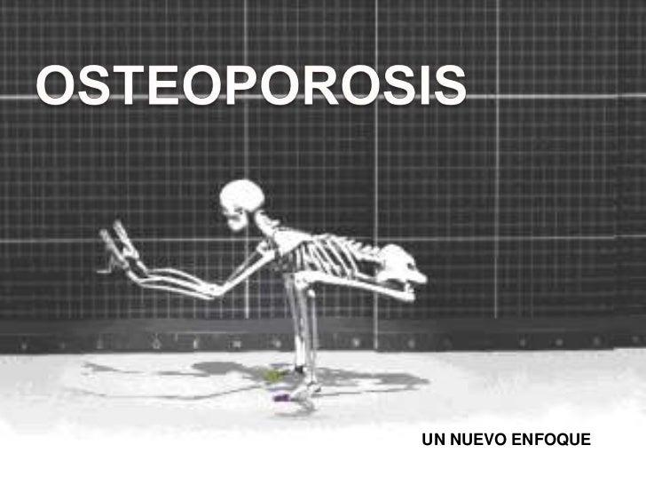 OSTEOPOROSIS<br />UN NUEVO ENFOQUE<br />UN NUEVO ENFOQUE<br />