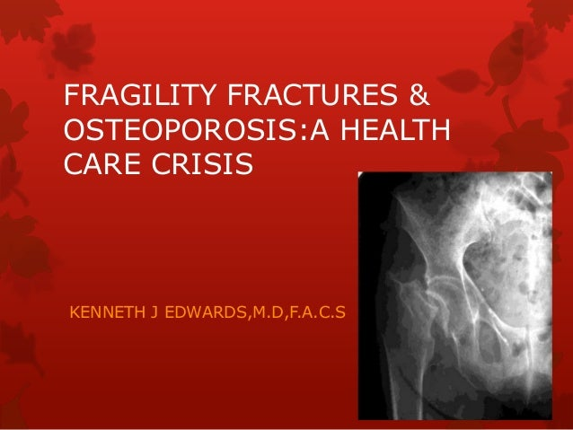 FRAGILITY FRACTURES & OSTEOPOROSIS:A HEALTH CARE CRISIS KENNETH J EDWARDS,M.D,F.A.C.S