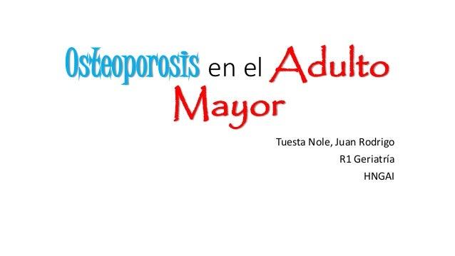 Osteoporosis en el Adulto Mayor Tuesta Nole, Juan Rodrigo R1 Geriatría HNGAI