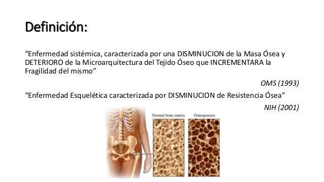 """Definición: """"Enfermedad sistémica, caracterizada por una DISMINUCION de la Masa Ósea y DETERIORO de la Microarquitectura d..."""