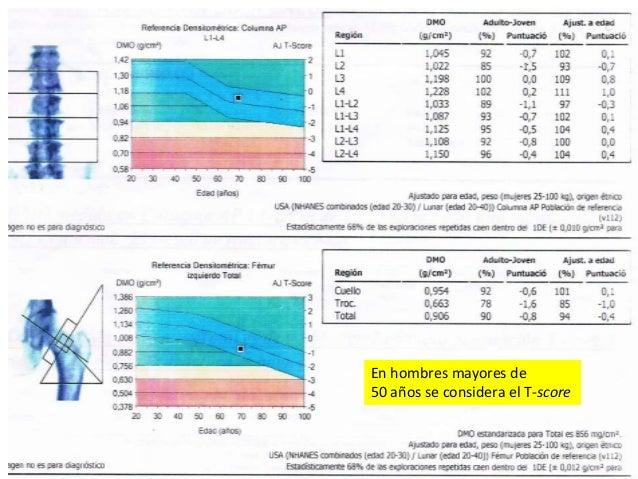 • 1 valor de calcemia en el límite superior. Valores normales: Calcemia total (8,5 - 10,3 mg/dl) Calcio iónico elevado (1....