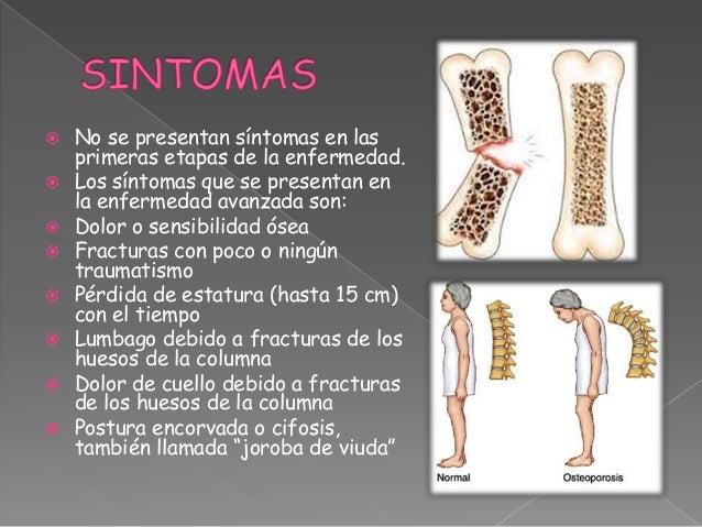 21++ Osteoporosis causas consecuencias y tratamiento ideas