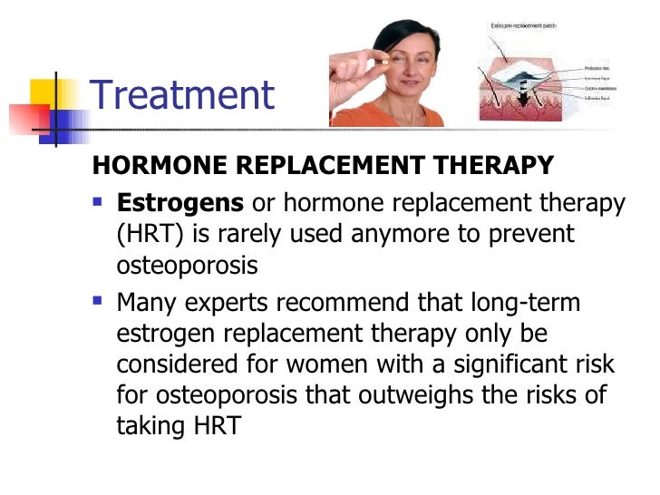 19+ Does estrogen replacement therapy cause osteoporosis viral