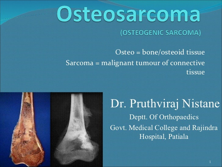Osteo = bone/osteoid tissue Sarcoma = malignant tumour of connective tissue 02/04/12 Dr. Pruthviraj Nistane Deptt. Of Orth...