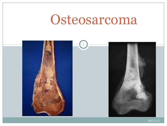 Osteosarcoma    1               04/23/13