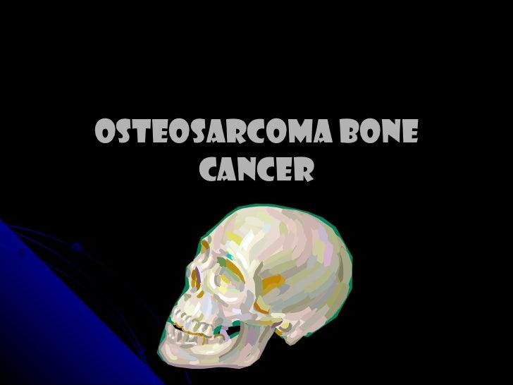 Osteosarcoma Bone Cancer