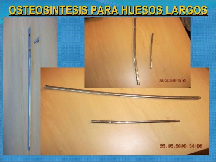 OSTEOSINTESIS PARA HUESOS LARGOS