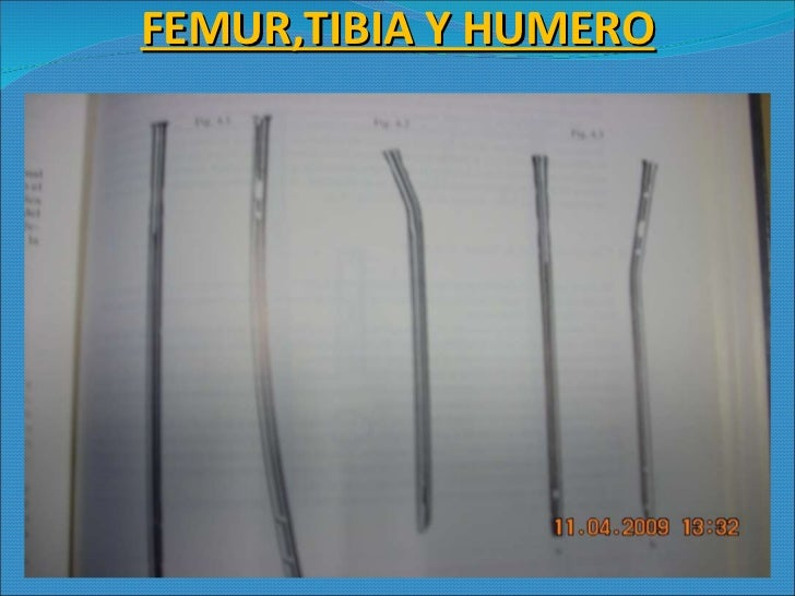 FEMUR,TIBIA Y HUMERO