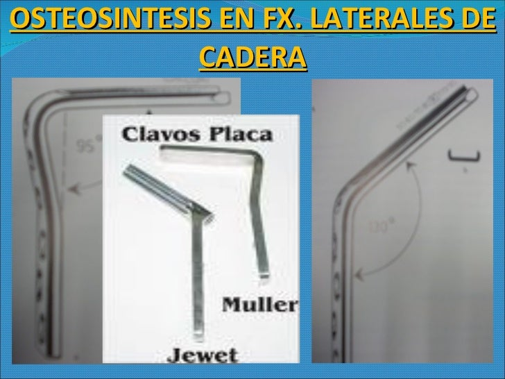 OSTEOSINTESIS EN FX. LATERALES DE CADERA