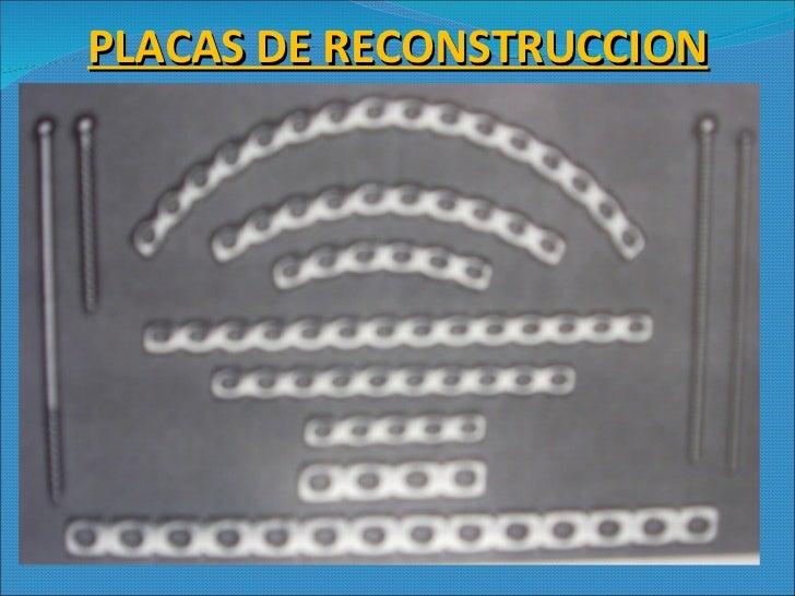 PLACAS DE RECONSTRUCCION