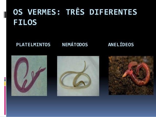 OS VERMES: TRÊS DIFERENTES  FILOS  PLATELMINTOS NEMÁTODOS ANELÍDEOS