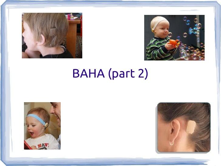 BAHA (part 2)