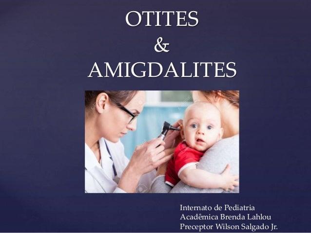 OTITES & AMIGDALITES Internato de Pediatria Acadêmica Brenda Lahlou Preceptor Wilson Salgado Jr.