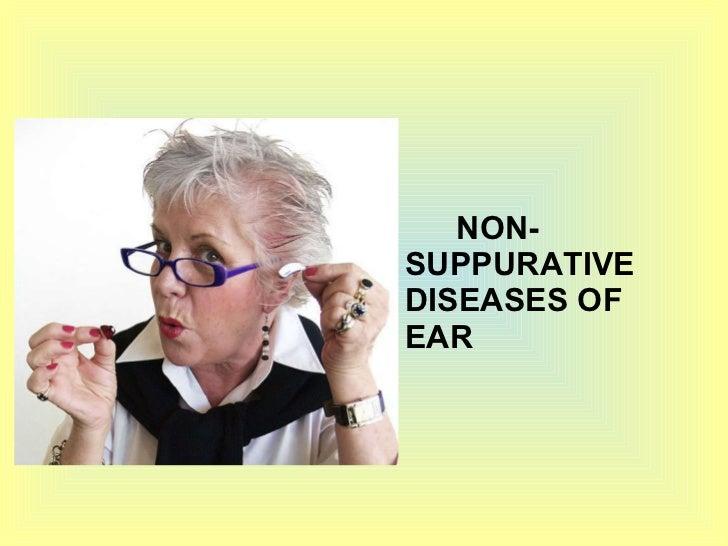 <ul><li>NON-  SUPPURATIVE DISEASES OF EAR </li></ul>