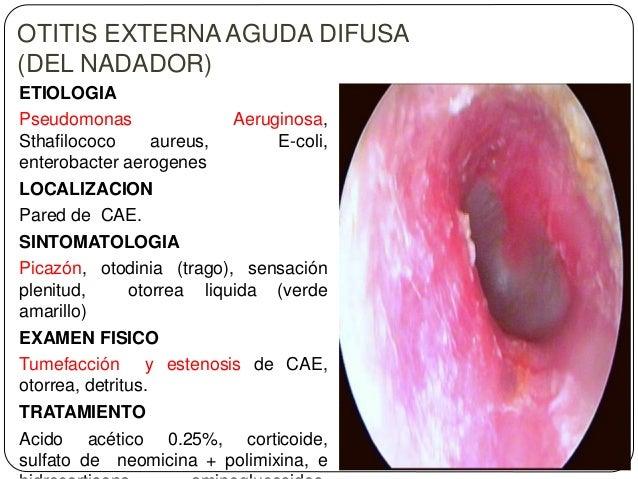 otitis externa, Skeleton