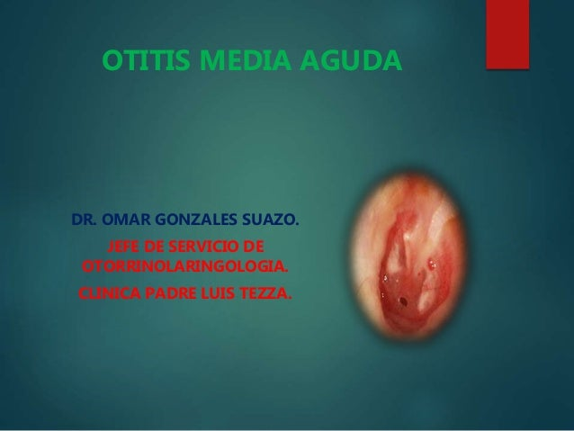 DR. OMAR GONZALES SUAZO. JEFE DE SERVICIO DE OTORRINOLARINGOLOGIA. CLINICA PADRE LUIS TEZZA. OTITIS MEDIA AGUDA