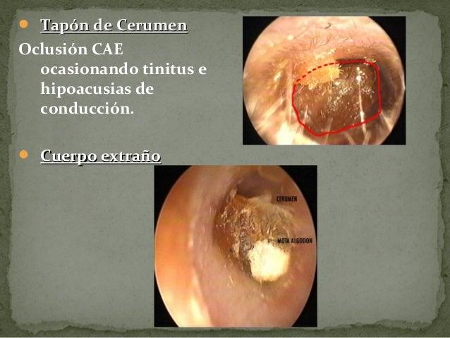 Otoscopia