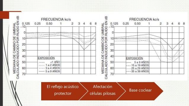 El reflejo acústico protector Afectación células pilosas Base coclear