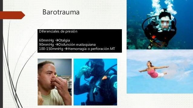 Barotrauma Manejo Analgésicos, antinflamatorios Antivertiginosos Descongestionantes tópicos Tubos de ventilacion