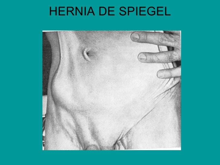Otras Hernias